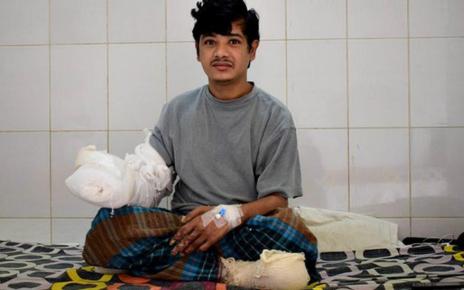 Manusia Pohon Dari Bangladesh Pilih Amputasi