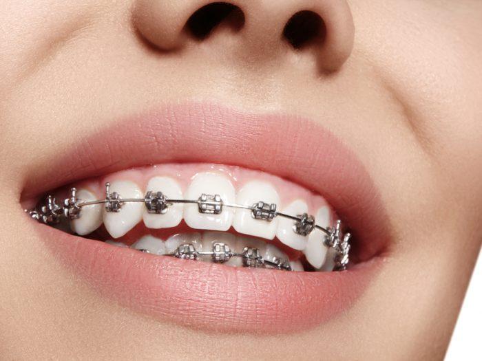 Berbagai Manfaat Menggunakan Behel Gigi